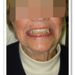 After Dental Implant